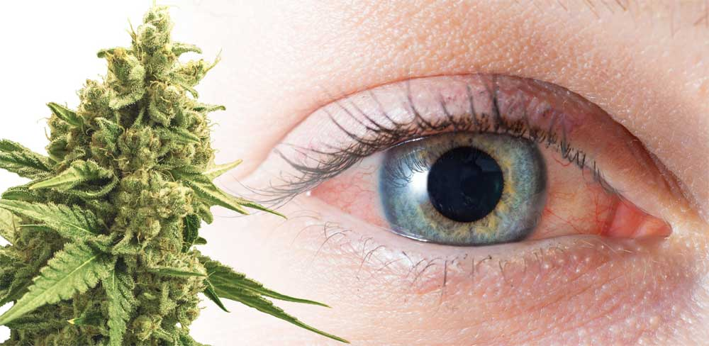 Why Does Weed Make Your Eyes Red